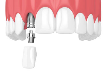 diagram of how dental implants in Garland work