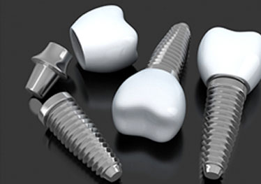 three dental implants with abutments and crowns
