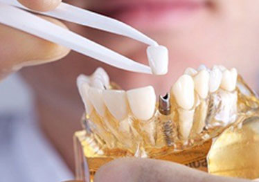 dentist putting a crown on a dental implant