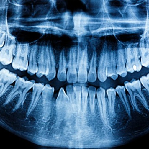 A full-mouth, panoramic X-ray.