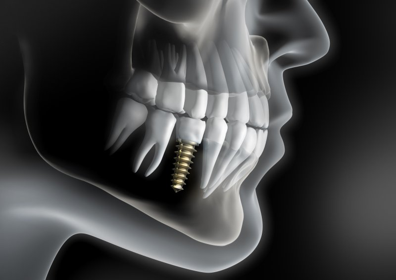 a digital image of a skeleton with a single tooth dental implant in the lower arch